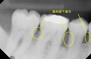 縁下歯石ー
