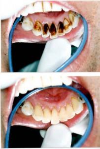 歯石除去、歯科クリーニング21